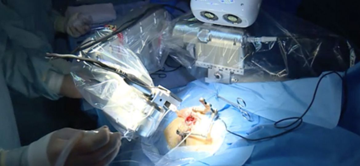 article_robot_surgeon