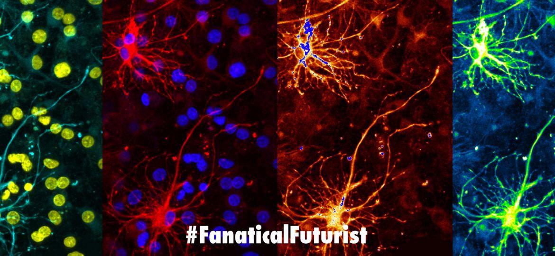 futurist_neuromorphic_computing_spinnaker
