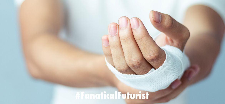 futurist_nanogenerator_wound_healing