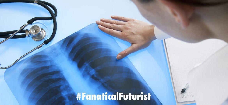 futurist_ai_lungs