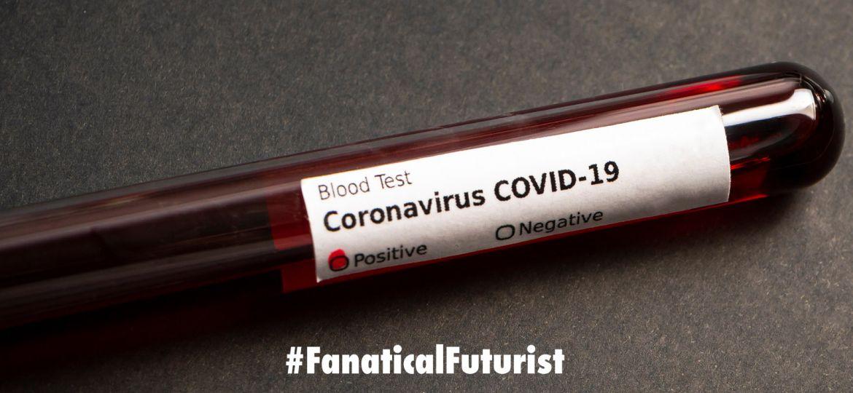 futurist_coronavirus_test