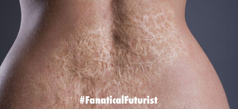 futurist_skin_burns